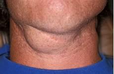 geschwollene lymphknoten hals einseitig maxillo surgery mucocele and ranula