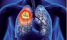 Le Matin Rencontre Scientifique Autour Du Cancer Du Poumon