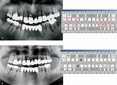 systematik der parodontaltherapie springerlink