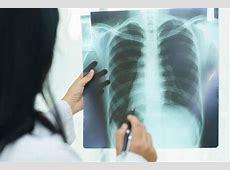 can chf cause pneumonia