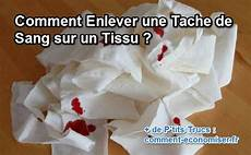 105 Best Nettoyer Les Taches Images On