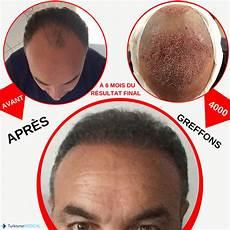 changement radical avec la greffe de cheveux un patient