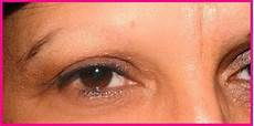 eyebrow hair loss what to do about your thinning eyebrows eyebrow loss the best solution