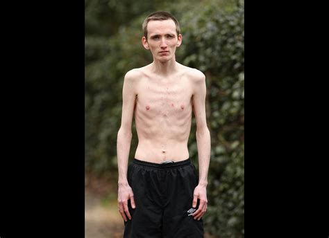 Skinniest Person In The World