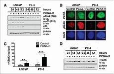 pcn9a antitumor effects of a novel small molecule targeting pcna