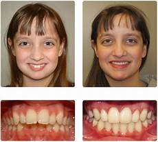 exercises to correct overbite how to fix overbite without surgery cardsdental