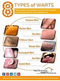 how do you know if a common wart is dying pin on personal