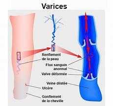 jambes lourdes sympt 244 mes traitement d 233 finition