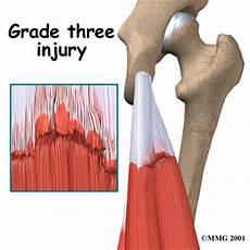 exercises for grade 1 hamstring hamstring injuries eorthopod com