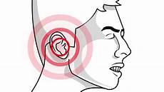 deboucher les oreilles 3 232 res de se d 233 boucher les oreilles wikihow