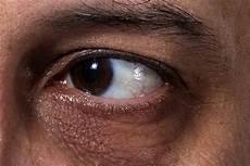 Gambar Bola Mata Yang Sehat Klik Ok