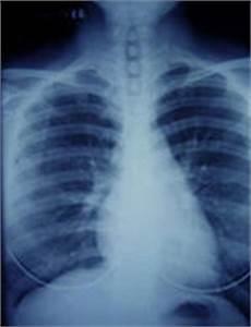 mesothelioma lung cancer asbestos victims center 800 mesothelioma victims center the premier mesothelioma