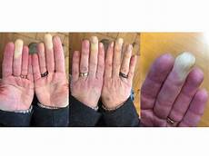Check Out Our Raynaud S Pictures Raynaudsdisease