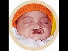 In Der Schwangerschaft - rauchen in der schwangerschaft