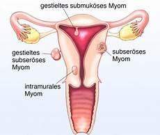 Myom In Der Gebärmutter - geb 228 rmuttermyom geb 228 rmuttergeschwulst ursachen