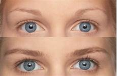 m2brows eyebrows growth 2x5ml m2brows 6 months treatment