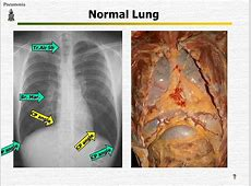 chest x ray results for pneumonia