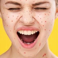 zink gegen akne zink gegen akne so hilft der wirkstoff bei pickeln