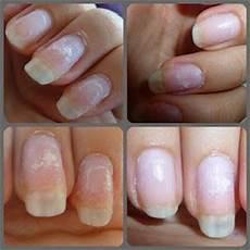 Enlever Colle Faux Ongles Sur Les Doigts Soins Des Ongles