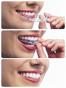 exercises to correct overbite overbite correction kraus orthodontics allen tx orthodontist