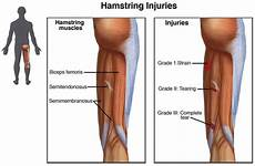 what is a hamstring strain kensington physio sports