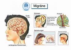 schwindelgefühl kopfschmerzen übelkeit müdigkeit stirnschmerzen schmerzen an der stirn