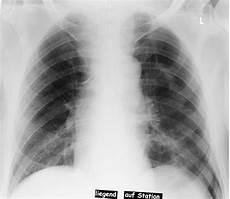 rippenfellentzündung schmerzen beim liegen file pneumothorax im liegen jpg wikimedia commons