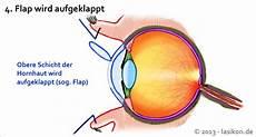 Augen Lasern Lassen 187 Infos Zu Methoden Kosten Risiken