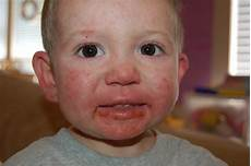 herpes bei babys about herpes page 286