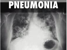 viral pneumonia symptoms in elderly