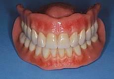 herstellung einer cover denture prothese im zahnlosen uk