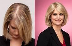 S Hair Loss Hairfax