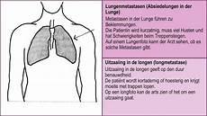 Wenn Nicht Mehr Gesund Wird Metastasen In Knochen