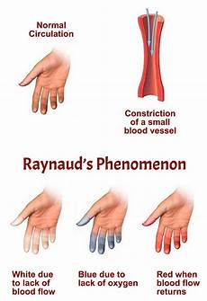 Raynaud S Phenomenon Aps Foundation Of America Inc