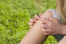 Schmerzen Unter Der Kniescheibe - kniescheibe knirscht ursache diagnose therapie med