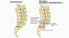 med educational lumbar spondylolisthesis grade 1 and 2 youtube