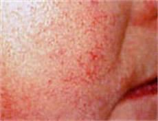 Rote äderchen Im Gesicht - was hilft bei rosazea 187 ulrike maldoff