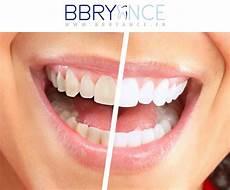 Comment Rendre Les Dents Blanches Comment Faire Pour
