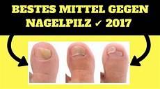 bestes mittel gegen nagelpilz 2018