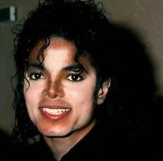 Michael Jackson Vitiligo - michael jackson s vitiligo is especially prominent in this