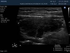 hashimoto thyreoiditis struma die wichtigsten differentialdiagnosen des kropfs