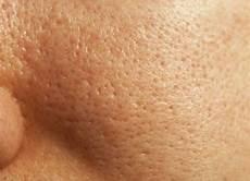 was gegen die groben poren im gesicht tun als mann