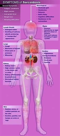 sarcoidosis a collection of ideas to try about health and
