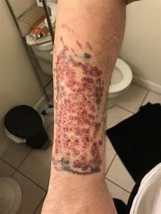 laser tattoo removal hadtohurt