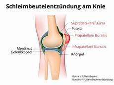 Schmerzen Unter Der Kniescheibe - bursitis gelenke fu 223 behandlung schleimbeutelentz 252 ndung
