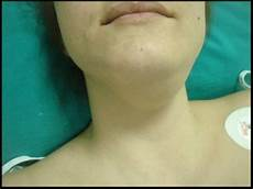 geschwollene lymphknoten hals einseitig figure 4 epidermoid cyst of the floor of the two