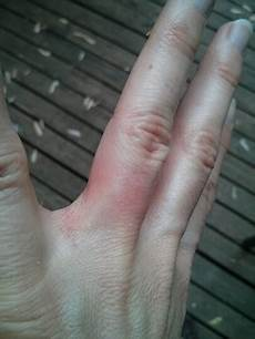 how your allergy to nickel may be causing wedding ring dermatitis