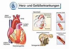 Herzstiche Herzstechen Ursachen Symptome Und
