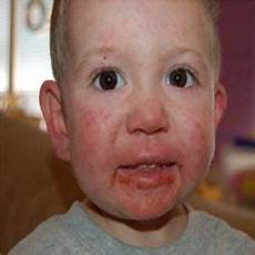 herpes bei babys what is neonatal herpes how to prevent baby from herps