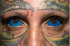 sclera tattoo gone wrong prompts warning from model catt